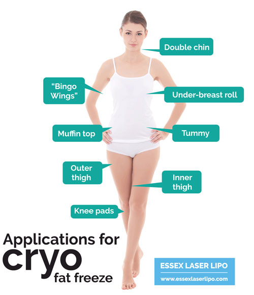 cryo fat freeze treatments