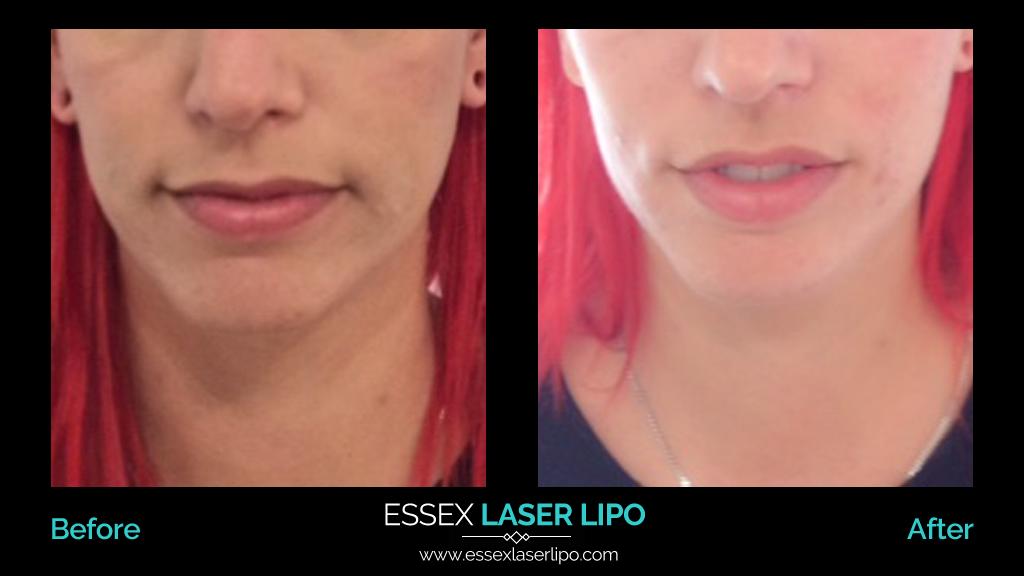 HIFU Facelift And Neck Lift Treatments | Essex Laser Lipo