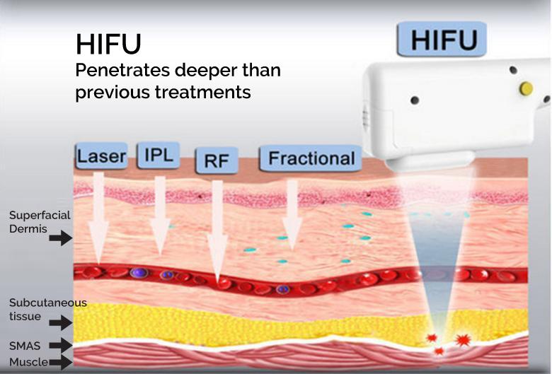 how does hifu work