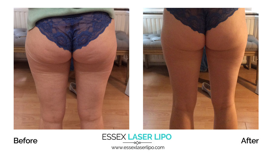 HIFU Before And After | CHC Aesthetics | Essex Laser Lipo