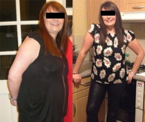 before-after-lipo-1