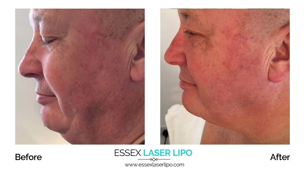 HIFU Facelift Before and After – Essex Laser Lipo – Cliff House Clinic